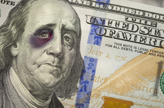 The Slow and Humiliating Death of the U.S. Dollar